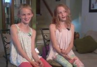 conjoined twins video